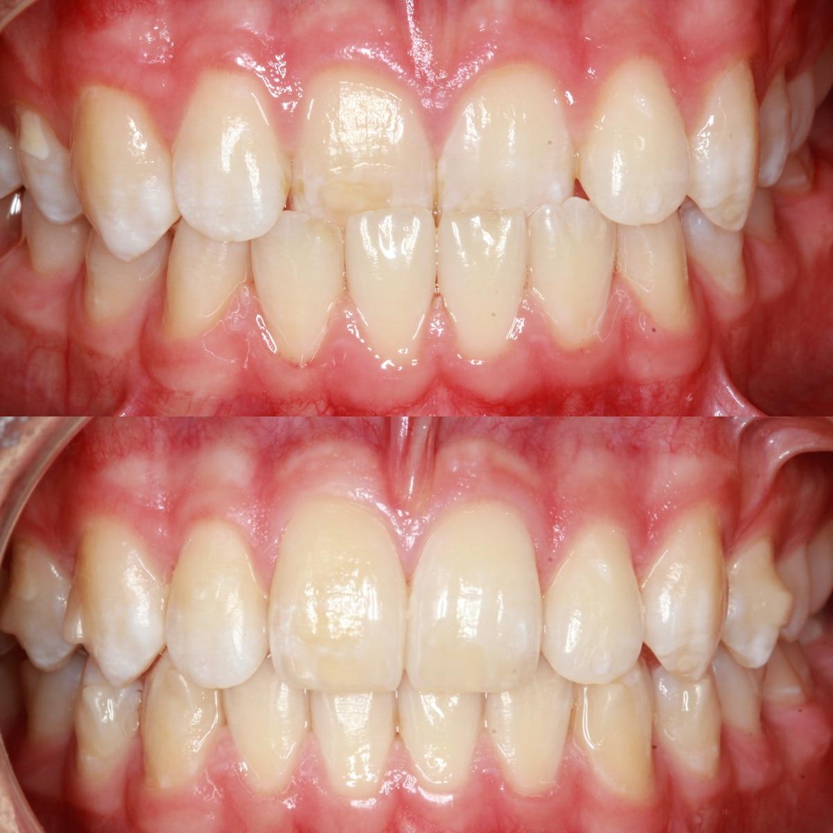 Overlapping Teeth